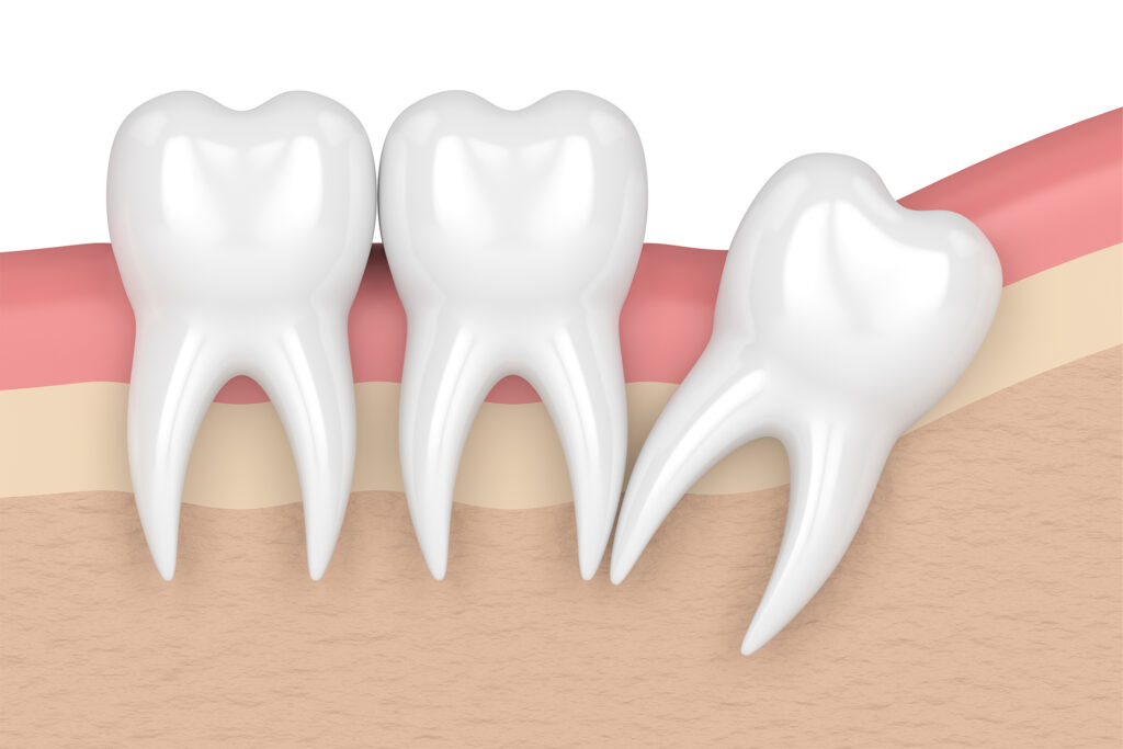 A 3d illustration of an impacted wisdom tooth