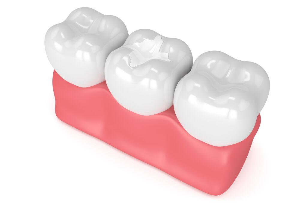 3d render illustration of molar teeth