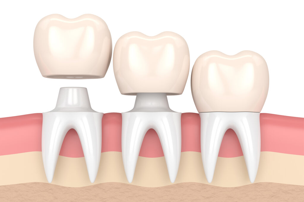 3d render of teeth with dental crowns in gums over white background