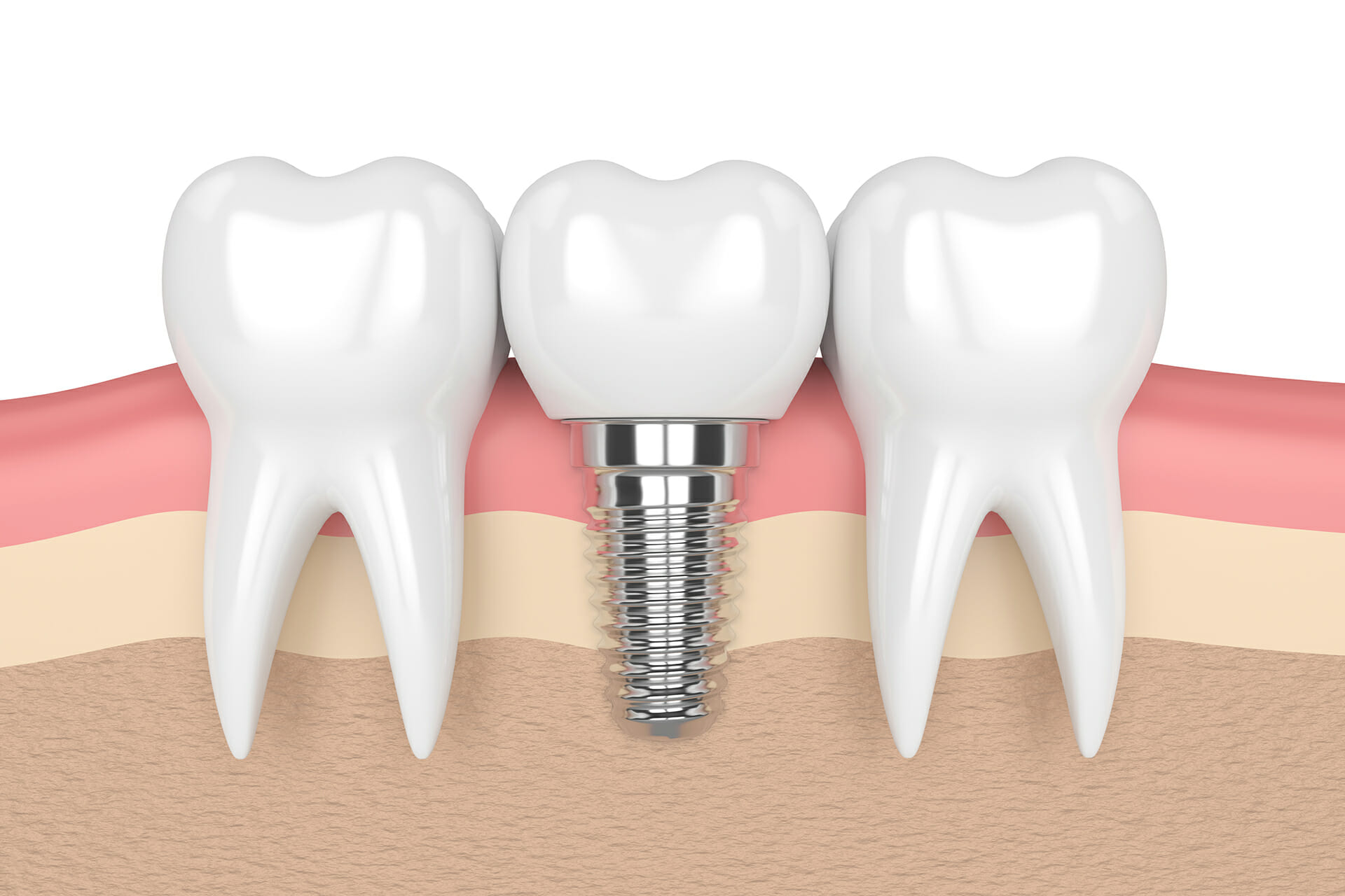 3d render of teeth with dental implant in gums over