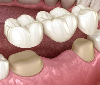 A 3d illustration of dental bridges