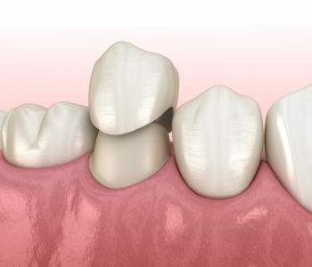 Dental crown placement to premolar teeth
