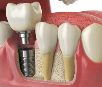 3D illustration model of healthy teeth with dental implant